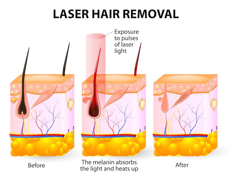 Laser hair removal. Vector diagram