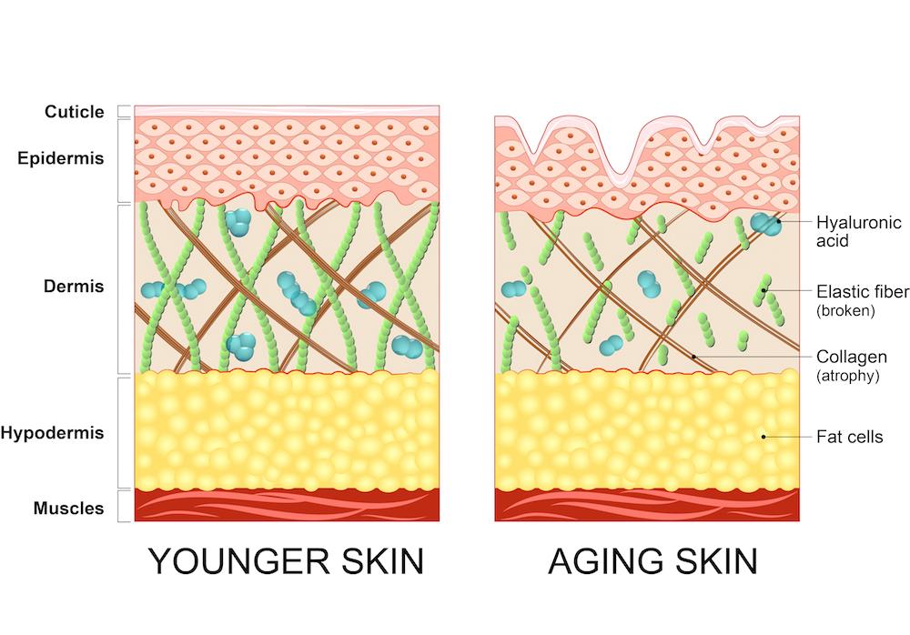 skin rejuvenation Melbourne - Puremed Laser Clinic